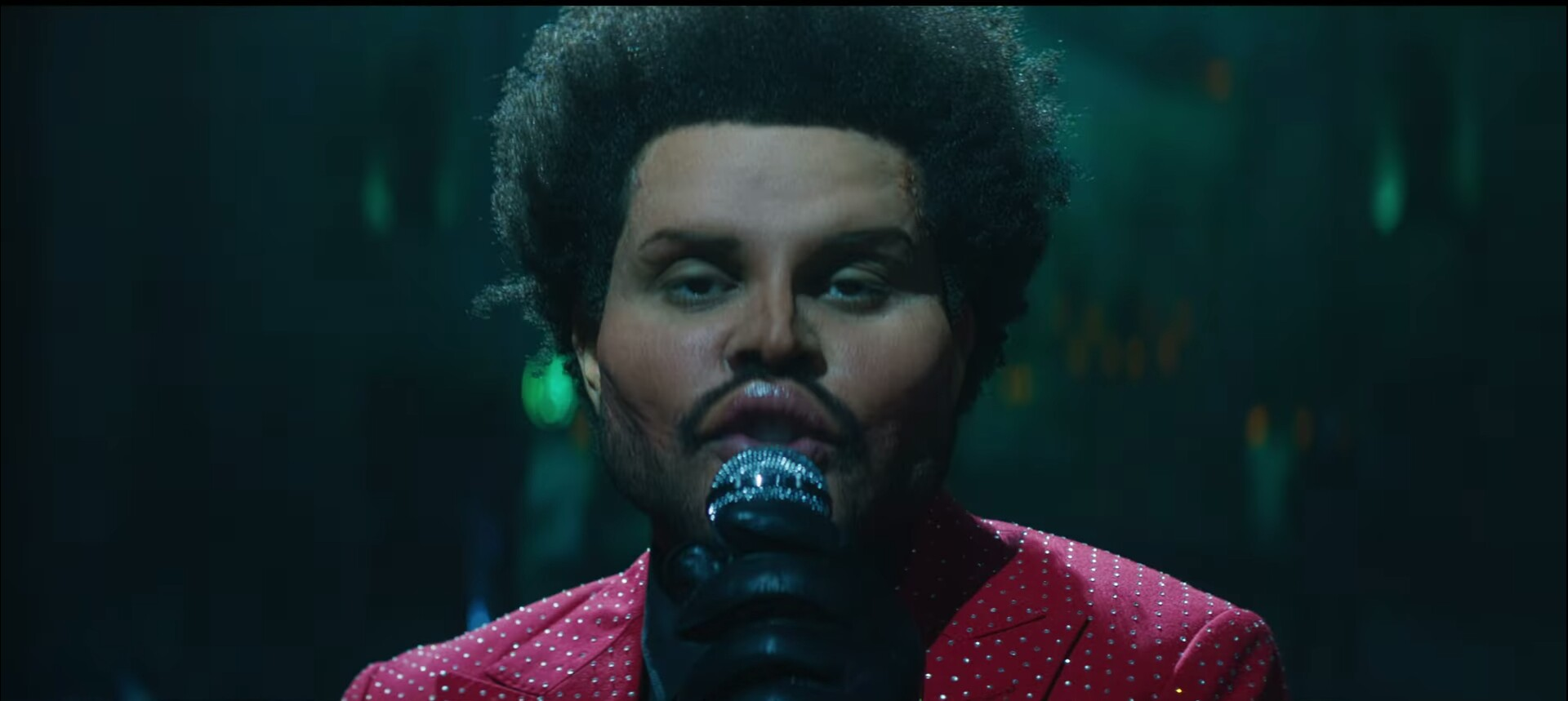 What Happened to The Weeknd Face? The Plastic Surgery Look Shocks Fans