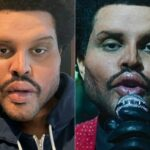 What Happened to The Weeknd Face Plastic Surgery